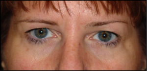 Tampa Eyelid and Orbital Surgery by Dr Kwitko