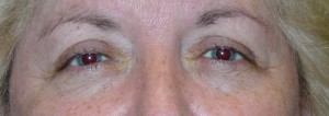 Ptosis Before Picture