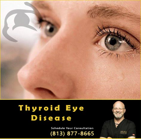 Dr Kwitko Thyroid Eyelid Disease Surgeon