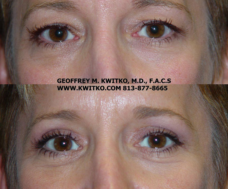 Gallery Tampa Blepharoplasty Surgery Dr Geoffrey M Kwitko